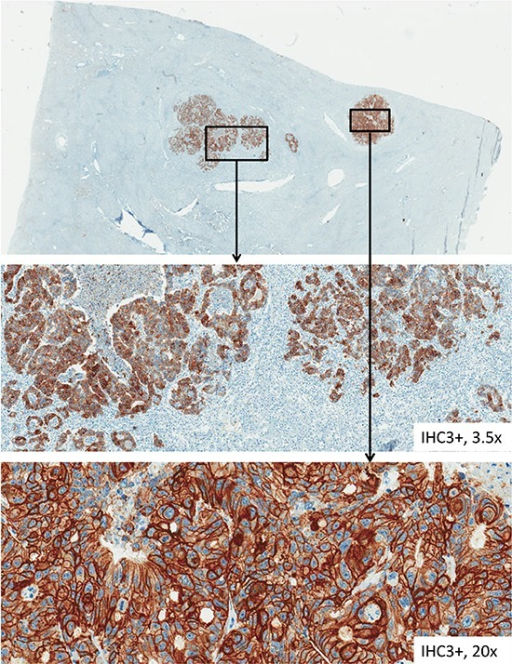 HER-3 immunohistochemical staining of tissue samples from liver metastasesThis figure pictures tissue samples from HER-3 immunohistochemical staining from CRC liver metastases with various factors of magnification.
