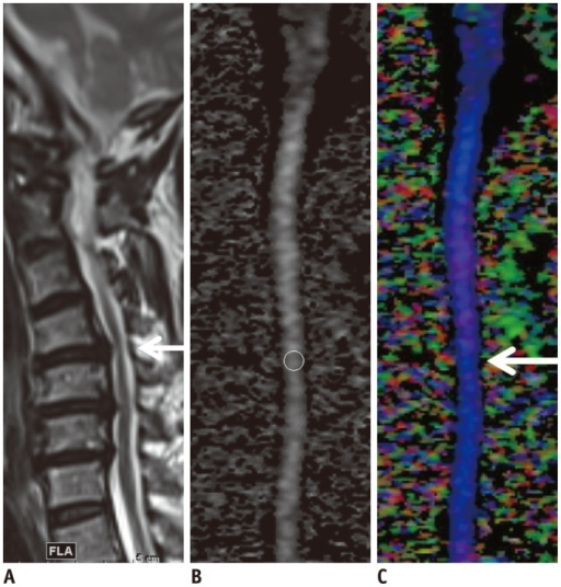 Cervical spondylotic myelopathy (CSM) detected using diffusion tensor imaging (DTI) parameters in patient whose T2-weighted image was designated as showing as grade 2 stenosis.Off-center sagittal T2-weighted image (A) of patient showed deformed spinal cord without definite signal change at C4-5 disc level, which was most stenotic level (arrow); thus, stenosis was designated as grade 2. DTI parameters were measured at that level on mid-sagittal gray-tone fractional anisotropy (FA) map (B). FA, mean diffusivity, longitudinal diffusivity, and radial diffusivity values of this patient were 0.349, 1.198 × 10-3 mm2/sec, 1.728 × 10-3 mm2/sec, and 0.933 × 10-3 mm2/sec, respectively. All values were compatible with diagnosis of CSM considering cut-off value of each parameter. Color-coded map (C) based on principal eigenvalues in sagittal plane revealed subtle dark color (arrow), suggesting changes in eigenvalues at most stenotic level. Blue coloring represents principal eigenvector aligned in head-foot direction.