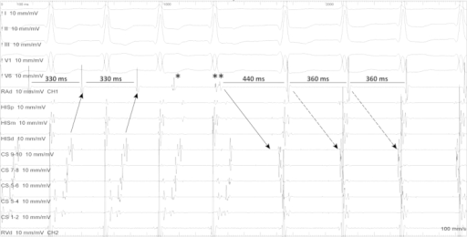 Spontaneous conversion from AV re-entry tachycardia to AV nodal re-entry tachycardia.Black arrows – show the retrograde conduction trough accessory pathway (eccentric atrial activation).* and ** show premature atrial contractions. The first one, marked with * did not affect the tachycardia while the other marked with ** found the fast pathway refractory and engaged the slow pathway initiating the AVNRT.Black discontinuous arrows – show the antegrade conduction trough slow AV node pathway.
