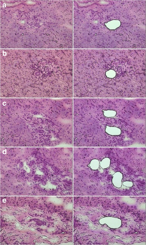 Hematoxylin and eosin staining of liver tissue sections before (left) and after (right) laser capture microdissection. a Bile ducts or DRs were isolated from tissue sections of normal liver, b mild hepatitis, c moderate hepatitis, d severe hepatitis, and e cirrhosis