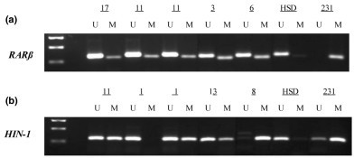 Representative methylation analysis of DL samples from BRCA carriers in whom aberrant methylation was found. (a) Hypermethylation of RAR-β found in ductal lavage (DL) samples from subjects 17, 11, 3 and 6. Replicate PCR experiments for subject 11, using DNA from the same duct, are shown to illustrate reproducibility. (b) Methylation analysis of HIN-1. Two different ducts for subject 1 are shown: the first is unmethylated (duct right 2a; see Figure 2) and the second shows hypermethylation of HIN-1 (duct right 1a). Subjects 11, 13 and 8 show aberrant methylation of HIN-1. In both panels, unmethylated control samples consisted of 1 mg/ml solutions of human sperm DNA (HSD), and methylated controls were 1 mg/ml solutions of DNA extracted from the MDA-MB-231 breast cancer cell line (231). Marker used is a 123bp DNA ladder - rungs represent 123bp, 246bp and 369bp. M, methylated; U, unmethylated.