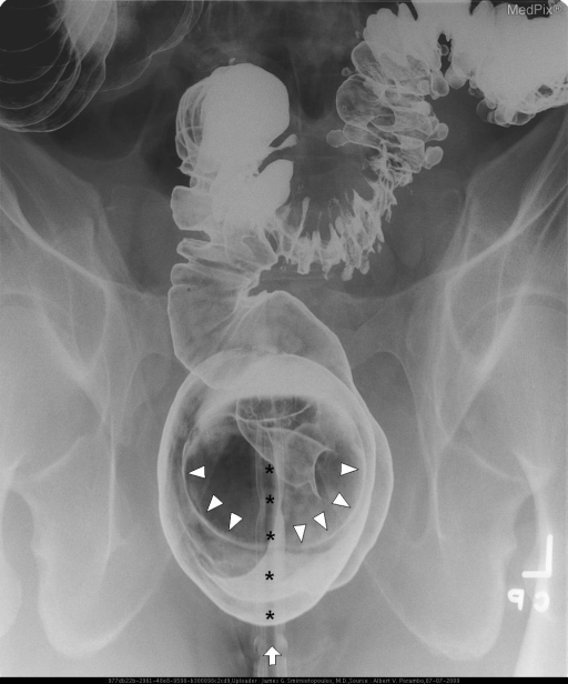 Spot views of the affected portion of the colon.  The rectal tube (arrow and asterisks) and ballon tip (arrowheads) are used to instill barium and air for the lower GI series (barium enema).  There is mild spasm of the sigmoid colon - which highlights multiple diverticuli.
