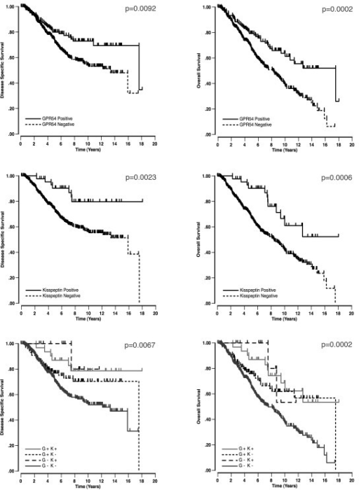 Disease specific (left) and overall (right) survival curves for kisspeptin and GPR54. The top two graphs demonstrate the significant survival curves for GPR54, while the middle two graphs demonstrate kisspeptin related survival. For the bottom two graphs, the p value refers to the distance between the GPR54 positive/kisspeptin positive cases (G+ K+, solid light grey) and the GPR54 negative/kisspeptin negative cases (G- K-, solid dark grey).