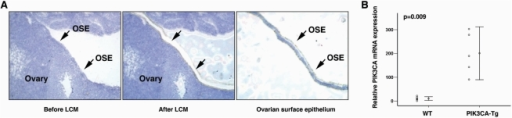 PIK3CA was overexpressed in OSE of PIK3CA-Tg mouse.A. Ovarian surface epithelial cells were microdissected by laser capture microdissection technology. B. PIK3CA mRNA expression in OSEs from WT or PIK3CA-Tg OSEs was analyzed by real-time RT-PCR. The primers were able to detected both wt PIK3CA cDNA and cDNA from transgene expression (myr-PIK3CA).