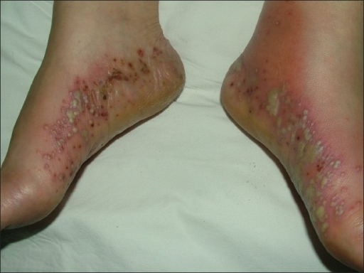 Pustular lesions on the medial sides of feet
