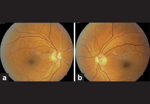 (a, b) Bilateral disc edema in a case of early chloroquine toxicity
