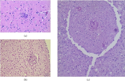"Toxoplasmosis—Microglial nodules (a, b) and ""dirty"" coagulative necrosis (c) containing a necrotic vessel with the features of endarteritis obliterans and thrombosis. H&E."
