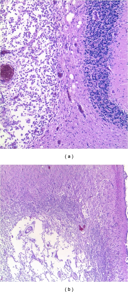 Toxoplasmosis. Chronic, treated, cystic lesions containing macrophages in the cerebellum (a) and periventricular regions (b).
