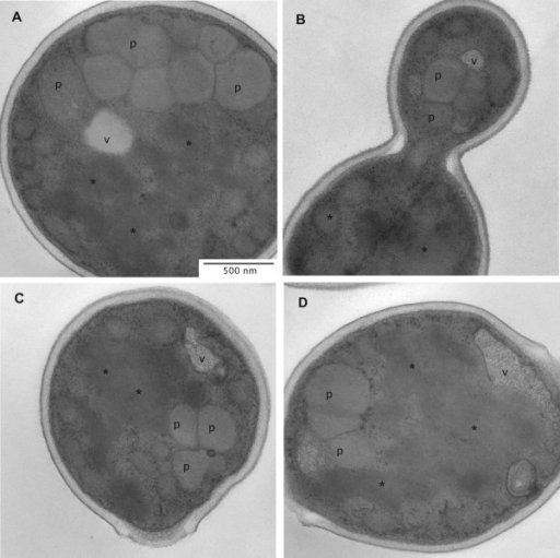 Images of recombinant P. pastoris producing HBsAg during growth on methanol. (A-D) Representative transmission electron micrographs of ultrathin sectioned cells of P. pastoris GS115 grown for 151 h on methanol as described in the Materials and Methods section. Abbreviations as specified in Figure 1.
