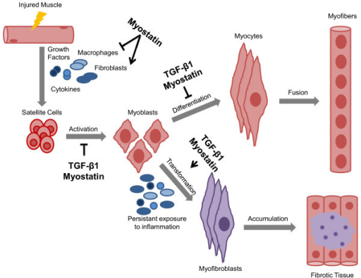 regulated and dysregulated muscle regeneration. in regu | open-i, Muscles