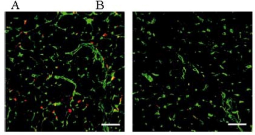 Incorporated human ES-derived endothelial cells at the sites of regeneration. A: Transplanted human ES-derived endothelial cells in mouse ischemic hindlimbs were detected by fluorescence stereomicroscope. B: Transplanted human adult endothelial cells. Red: human CD31 Green: host mouse CD31. Scale Bar: 50 μm.