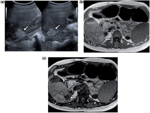 A 16-year-old girl with Turner syndrome, chronic portal vein occlusion, and multiple hepatocellular adenomas. (a) Composite longitudinal and transverse greyscale ultrasound images show an echogenic mass (arrows) in the posterior segment of the right hepatic lobe with circumscribed lobular margins. (b,c) Axial T1-weighted GRE in-phase and out-of-phase images demonstrate signal loss within the lesion (arrows) on out-of-phase imaging due to the presence of intracellular lipid. Percutaneous needle biopsy of several liver lesions confirmed the diagnosis of multiple hepatocellular adenomas. An additional mass (arrowheads) immediately adjacent to the presented hepatocellular adenoma was histopathologically confirmed to be a benign regenerative nodule.