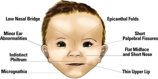 Facial characteristics that are associated with fetal alcohol exposure.