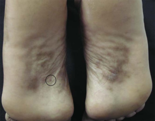 Racial melanosis on the plantar arch of a phototype V patient