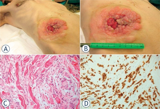 Peristomal skin tumor infiltration from gastric cancer at the ileostomy site. Baseline clinical presentation (A, B). The histological examination (E.E.) showed a dermal infiltration of neoplastic cells with atypical and eccentric nuclei, with nucleoli and pale cytoplasm and a signet ring aspect (C), immunoreaction for CAM5.2 (D).