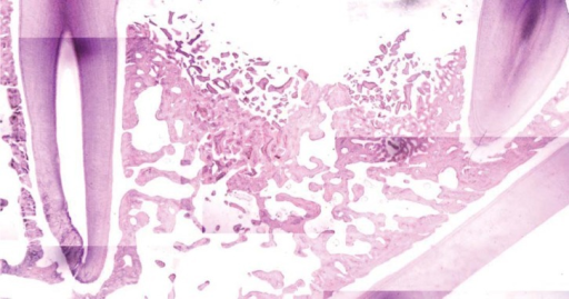 Microphotograph shows the histologic specimen for mineral tissue measurement (H&E stain, 12.5×).