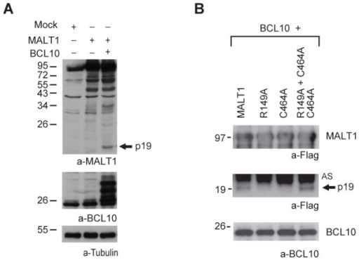 BCL10 mediates cleavage of MALT1 at R149 in 293T cells.A) Immunoblot of lysates of 293T cells transiently expressing MALT1 alone or in combination with BCL10 with antibodies against MALT1 [31], BCL10 and tubulin. B) Immunoblot of streptavidin pull-downs (bio-IPs) of Avi-tagged MALT1 and its mutants co-expressed with BCL10 in 293T cells as specified. AS: a-specific band. Arrows indicate the N-terminal p19 cleavage fragment. All molecular mass standards are in kDa.