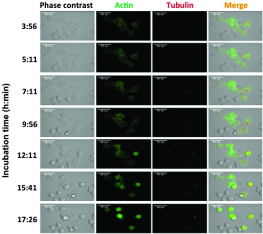Time-lapse observations of paracrystal formation in viblastine-treated A549 cells. Cells with fluorescently-labeled tubulin and actin were observed using an LCV110 system. Incubation times are shown on the left of the images. Duration of incubation is presented by the horizontal axis (magnification, ×140).