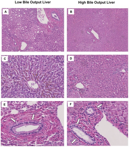 Histology of livers after 6 hours of normothermic machine perfusion.In comparison to livers with high bile output, livers in the low bile output group displayed more signs of hepatic necrosis (panels A and B) and venous congestion (panels C en D). Despite these differences in hepatic parenchymal damage between the two groups, there were no major differences in the degree of biliary damage (panels E and F).