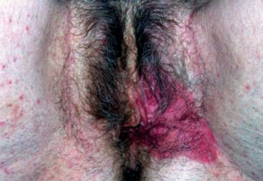 Pagets disease of the vulva picture picture 701