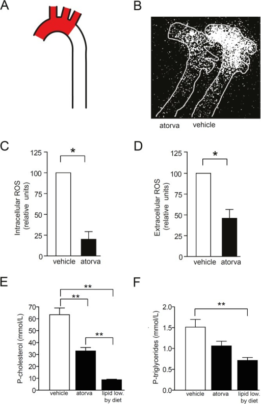 Atorvastatin reduces intracellular and extracellular ROS levels within the atherosclerotic aortic arch.Female Apoe-/- mice were fed Western diet to induce advanced atherosclerotic lesions in the aortic arch. Then, mice were treated with vehicle (DMSO) or oral atorvastatin (100 mg/kg per day) for 5 days. (A) ROS levels were analyzed in the aortic arch (red areas). (B–D) Atorvastatin treatment reduced intracellular (B and C) and extracellular ROS levels (D). (E and F) Plasma cholesterol (E) and triglycerides (F) was reduced by atorvastatin and, to larger extent, by lipid lowering by diet. n = 6 in each group. **p<0.01 vs vehicle, *p<0.05 vs vehicle. One sample t-test (C and D). ANOVA with Dunnet's test for multiple comparisons (E and F).