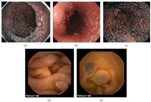 Endoscopic views of Case 1. (a) Colonoscopy revealed multiple rectal polyps. (b) Esophagogastroduodenoscopy (EGD) showed whitish polypoid lesions in the esophagus. (c) EGD showed multiple gastric polyps. (d) Capsule endoscopy revealed multiple polypoid lesions similar in color to the surrounding mucosa in the jejunum, with their diameters of 2–5 mm. (e) Capsule endoscopy revealed hemangiomas in the jejunum.
