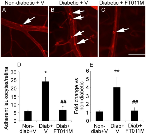 FT011M reduced retinal leukostasis and ICAM-1 mRNA levels in Ren-2 rats diabetic for 8 weeks.Non-diab, non-diabetic. Diab, diabetic. V, vehicle. (A to C) Micrographs showing leukocytes (arrows) adherent to the vasculature. Bar, 40 μm. (D) Leukostasis. N = 5 to 6 rats per group. (E) ICAM-1 mRNA levels. N = 7 to 9 rats per group. *P < 0.05 and **P < 0.01 to non-diab + V. ##P < 0.01 to diab + V. Values are Mean ± SEM.