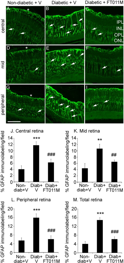 FT011M reduced Müller cell gliosis in the retina of Ren-2 rats diabetic for 8 weeks.Non-diab, non-diabetic. Diab, diabetic. V, vehicle. Three-μm paraffin sections. IPL, inner plexiform layer. INL, inner nuclear layer. OPL, outer plexiform layer. ONL, outer nuclear layer. Original magnification, 400X. Bar, 40 μm. (A to C) Central retina. (D to F) Mid retina. (G to I) Peripheral retina. In non-diab + V, GFAP immunolabeling is present on the retinal surface (asterisk) and in Müller cell processes (arrows) extending throughout the retinal layers and in the central, mid and peripheral retina (A, D, G). GFAP immunolabeling is increased in diab + V (B, E, H). In diabetic rats, FT011M reduced GFAP immunolabeling in the central (G), mid (F) and peripheral (I) retina to the level of non-diab + V. (J to M) *P < 0.01 and ***P < 0.001 to non-diab + V. ##P < 0.01 and ###P < 0.001 to diab + V. N = 4 to 6 rats per group. Values are Mean ± SEM.