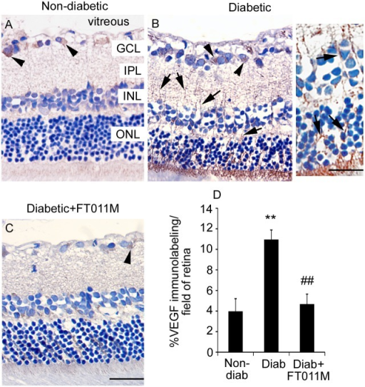 FT011M reduced VEGF immunolabeling in retina of Ren-2 rats diabetic for 8 weeks.Non-diab, non-diabetic. Diab, diabetic. V, vehicle. Three-μm paraffin sections. GCL, ganglion cell layer. IPL, inner plexiform layer. INL, inner nuclear layer. ONL, outer nuclear layer. Counterstain, haematoxylin. (A). In non-diab + V, VEGF immunolabeling is occasionally detected in ganglion cells (arrowheads) in the GCL. (B) In diab + V, VEGF immunolabeling is increased compared to non-diab + V and detected in ganglion cells and Müller cell processes (arrows) extending throughout the retina. Inset showing higher powered image of Müller cell processes. (C) In diabetic rats treated with FT011M, VEGF immunolabeling was reduced to the level of non-diab + V. (A to C) Original magnification, 400X. Bar, 40 μm. Inset: Bar, 75 μm. (D) **P < 0.01 to non-diab + V. ##P < 0.01 to diab + V. N = 4 to 6 rats per group. Values are Mean ± SEM.