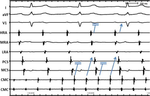 Intracardiac electrograms from high right atrium (HRA), mid right atrium (MRA), low right atrium (LRA), proximal coronary sinus (PCS), middle coronary sinus (MCS) and circular mapping catheter (CMC).