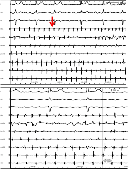 Upper panel shows the same SVC tachycardia being conducted 1:1 to the atria (red arrow) which precedes onset of atrial fibrillation. Lower panel shows the SVC tachycardia being unperturbed by ongoing atrial fibrillation.