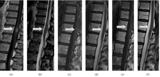 Preoperative sagittal MRI shows the spinal cord tumor at the level of the conus medullaris (arrow). T1-weighted MRI with gadolinium shows high signal intensity relative to that of the cord (a) and T2-weighted MRI shows inhomogenous hypointensive signal (b). Four weeks' follow-up sagittal T1-weighted MRI with gadolinium (c) and T2-weighted MRI (d) and 28 weeks' follow-up T1-weighted MRI with gadolinium (e) and T2-weighted MRI (f) show the residual tumor (arrow).