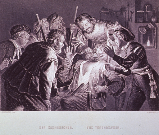 <p>Interior scene: A group of men watch as a dentist extracts a tooth from a man sitting in a chair; the scene is illuminated by a candle held by one of the men.</p>