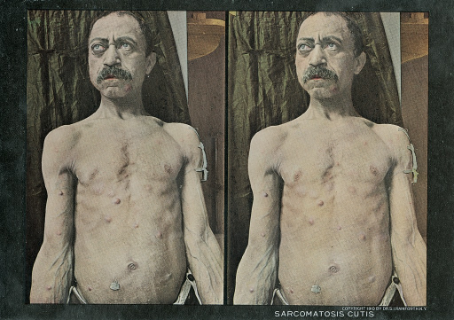 <p>Stereographies of a shirtless man with nodes caused by sarcoma all over his chest.  Stereoscopic skin clinic.</p>