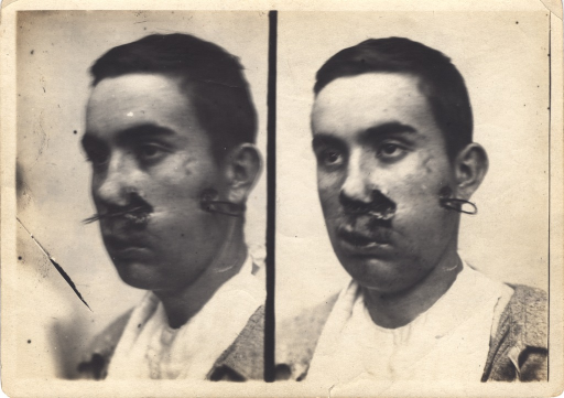 <p>Black and white photograph of an injured soldier with facial wounds posing at two different angles. There is a bullet wound on the patient's left cheek which has caused significant trauma to the face.  It appears the bullet entered near the ear and exited near the nose. There is a piece of metal inside the wound, extending from the entry point to the exit point.</p>