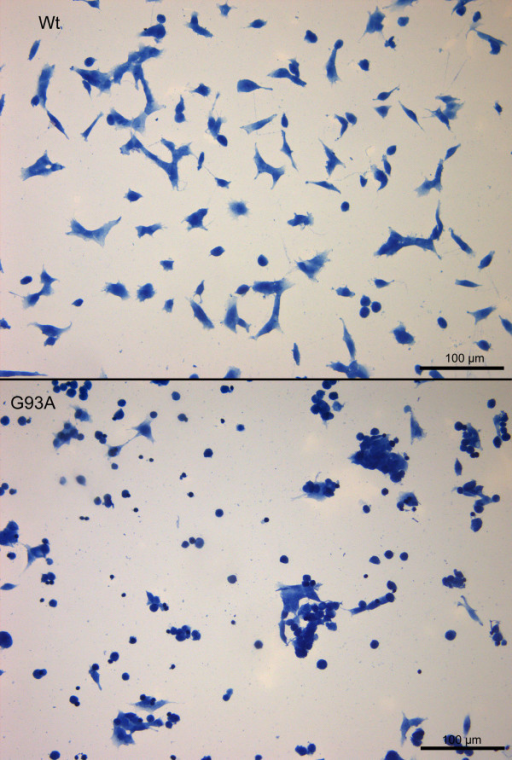Toxicity of pneumolysin for Wt-SOD1 and G93A-SOD1 neuroblastoma cells. Hemalum staining showed a substantially higher density of living Wt-SOD1 SH-SY5Y cells than G93A-SOD1 SH-SY5Y cells after PLY treatment. Please note the shrinkage and clustering of severely damaged/dead G93A-SOD1 neuroblastoma cells.