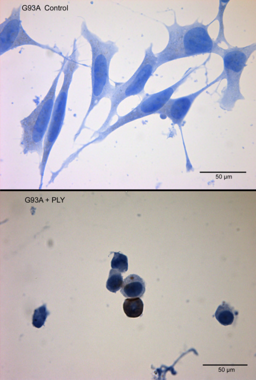 Toxicity of pneumolysin for G93A-SOD1 neuroblastoma cells. Apoptotic G93A-SOD1 SH-SY5Y cells after incubation with 0.5 μg/ml PLY for three hours detected by immunocytochemistry for activated caspase-3.