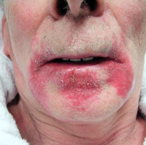 Prior to botulinum toxin injections into the salivary glands, there was a marked perioral dermatitis