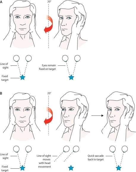 Head impulse test. A: The right ear has intact peripher ...