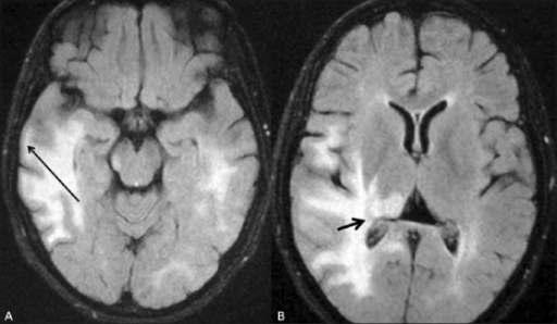 (A and B) Axial FLAIR MRI images of the brain show the T2- hyperintense lesions, seen in Figure 3, more conspicuously, especially in the subcortical (long arrow in A) and periventricular (short arrow in B) regions