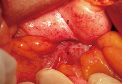 Colon Bladder Fistula Surgery http://openi.nlm.nih.gov/detailedresult.php?img=3092082_jksc-27-94-g003&req=4