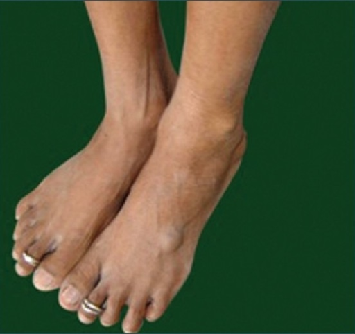 Bluish soft swellings over the left foot