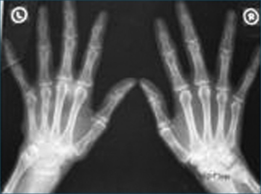 X- ray both hands showing multiple cystic lesions on the radial aspect of phalanges