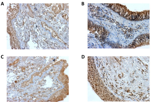 TLR4 and TLR9 are expressed in lung tissue. Endobronchial biopsy tissue sections from COPD patients and control subjects were processed by immunohistochemistry as described in Materials and Methods. Representative examples show similar immunoreactivity for TLR4 in the epithelium and inflammatory cells of control subjects (A) and COPD patients (B). TLR9 was also expressed at comparable levels in the epithelium and inflammatory cells in healthy controls (C) and COPD patients (D). All magnifications are 200×.