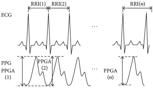 1000 consecutive data points from ECG signals and PPG signals.