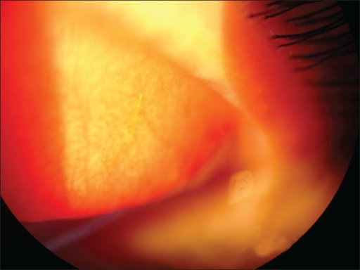 Everted upper eyelid showing a glochid penetrating the superior subtarsal space