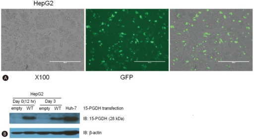 The induction of 15-PGDH expression in HepG2 cells by transfection with a vector encoding WT 15-PGDH. Transfection was confirmed by green fluorescent proteins taining (A) and immunoblotting for 15-PGDH (B). Huh-7 cells were used as a positive control. 15-PGDH expression was stronger at day 0 than at day 3 of transfection.
