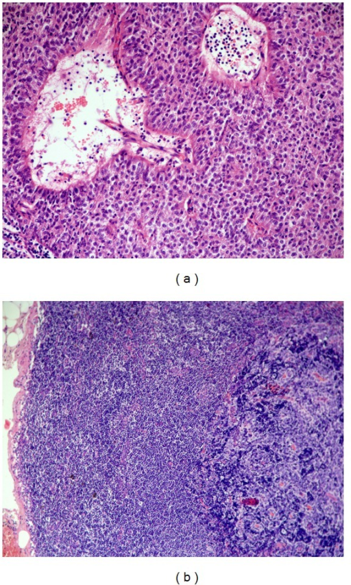 (a) Case 1, HE, 200x. B3 thymoma metastasis in the lymph node. EC with scant cytological atypia are seen forming sheets and palisades around vessels. Two perivascular spaces (PVS) are seen. (b) Case 3, HE, 50x lymph node partial involvement by metastatic B2 thymoma. The subcapsular sinus is partially preserved. The immature T-lymphocyte-rich metastasis of B2 thymoma is seen on the right, whereas residual lymph node B cell follicles and T-cell areas are seen on the left.