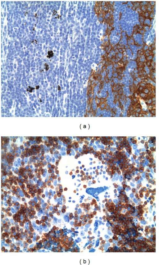 (a) Case 3, 200x. CK19 staining of EC networks in the laterocervical lymph node, sharp distinction to the normal lymph node. Scattered macrophages with granular dust are seen on the left in the normal part of the lymph node. (b) Case 2, 400x. CD1a + immature T cells around and in the PVS formed in the lymph node metastasis among EC.