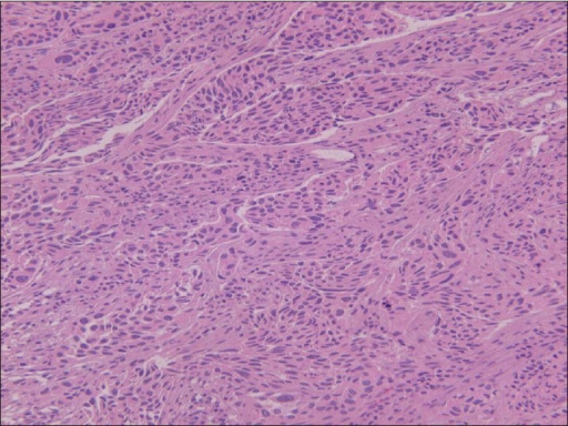 Solid nests of high-grade urothelial carcinoma infiltrating the muscularis propria of the urinary bladder (H and E, ×200)